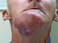 クラミジア_喉から顎1