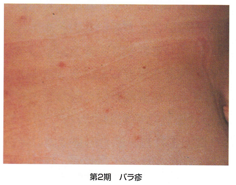 梅毒症例写真_第2期_バラ疹