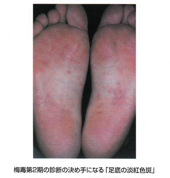 梅毒症例写真_第2期_足裏s