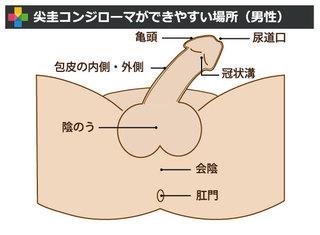 尖圭コンジローマ_男性_場所
