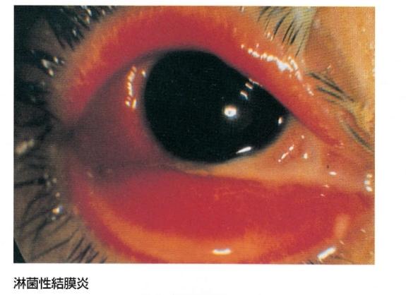 淋病性結膜炎