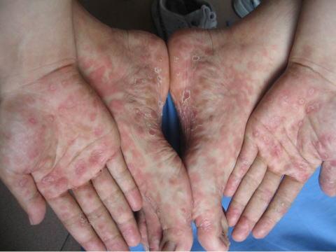 梅毒症例写真_第2期_バラ疹_手足