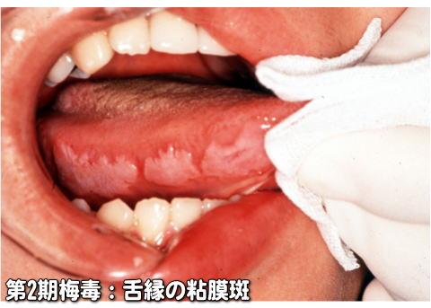 梅毒症例写真_第2期_梅毒性乳白斑3