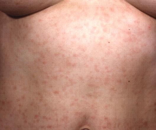 梅毒症例写真_第2期_梅毒性バラ疹3