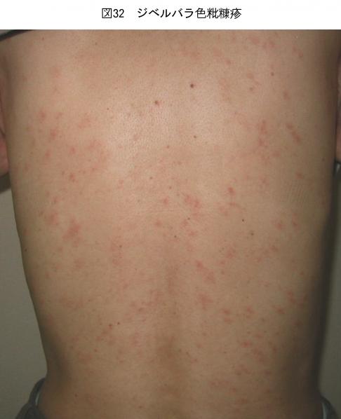 ジベルばら色粃糠疹_続発疹_症例写真2