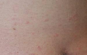 梅毒性バラ疹とジベルばら色粃糠疹の違い